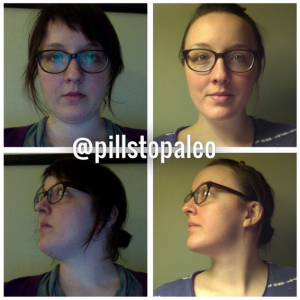 Left: Withdrawing from antidepressants, February 2014. Right: November 2014, six months paleo.